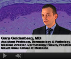 Watch Video: Dr. Goldenberg featured on The Doctors Channel speaking about treatment options for Actinic Keratosis