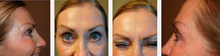 PHOTOS: DYSPORT/BOTOX - ONE WEEK DYSPORT INJECTIONS (female patient)