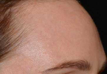PHOTOS: 3 Weeks After Laser Treatment for Hyperpigmentation (forehead)