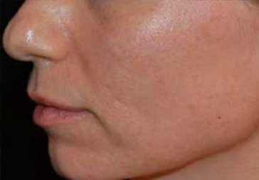 PHOTOS: 3 Weeks After Laser Treatment for Hyperpigmentation (cheek)