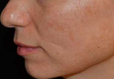 PHOTOS: Before Laser Treatment for Hyperpigmentation (cheek)