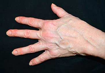 PHOTOS: HAND REJUVENATION WITH RADIESSE -  Before Treatment - female patient