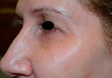 PHOTOS: RESTYLANE FOR UNDER EYEHOLLOWS - After Treatment Female, side view (patient 1)