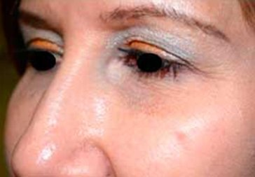 PHOTOS: RESTYLANE FOR UNDER EYEHOLLOWS - After Treatment Female, oblique view (patient 1)