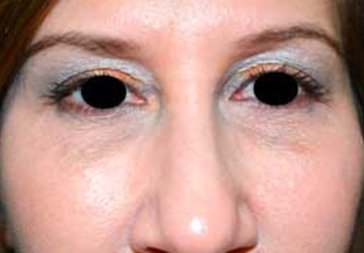 PHOTOS: RESTYLANE FOR UNDER EYEHOLLOWS - After Treatment Female, frontal view (patient 1)