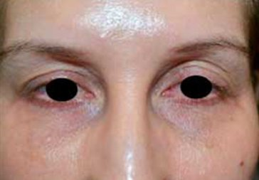 PHOTOS: RESTYLANE FOR UNDER EYEHOLLOWS - Before Treatment Female, frontal view (patient 1)