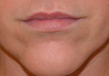 PHOTOS: LIP AUGMENTATION - Before Treatment - female (lips)