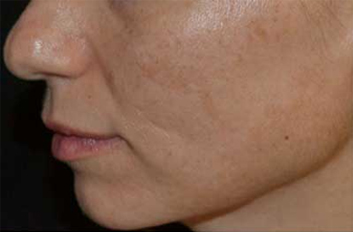 Before Fraxel Dual for Hyperpigmentation Thumb
