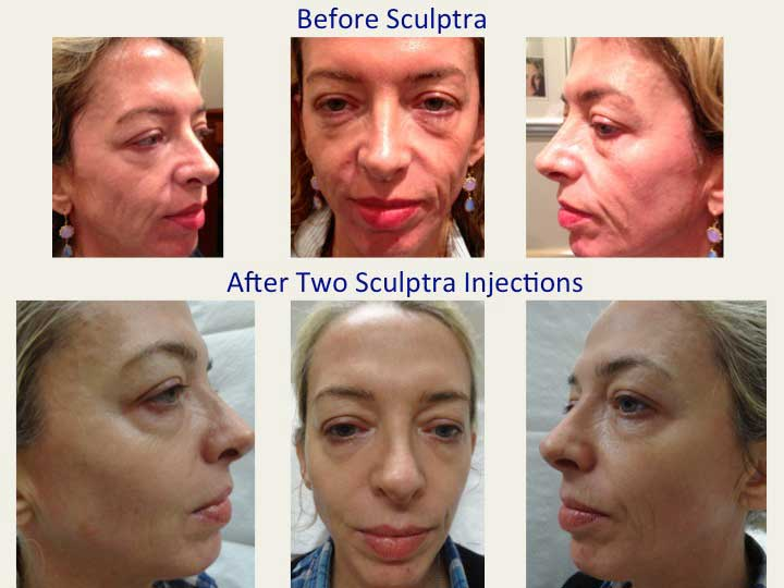 Before and After Two Sculptra Injections