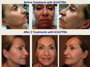Before and After 2 Treatments with Sculptra