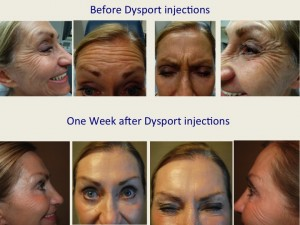 Before and After one week After Dysport injections (female patient)