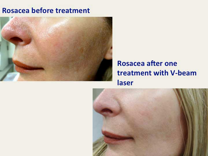 Rosacea Before and After one treatment with V-beam laser (female patient)