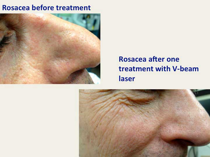 V Beam Laser New York Scars And Keloid Treatment Nyc