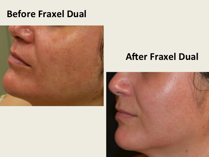 Before and After Treatment Photos: Fraxel Dual