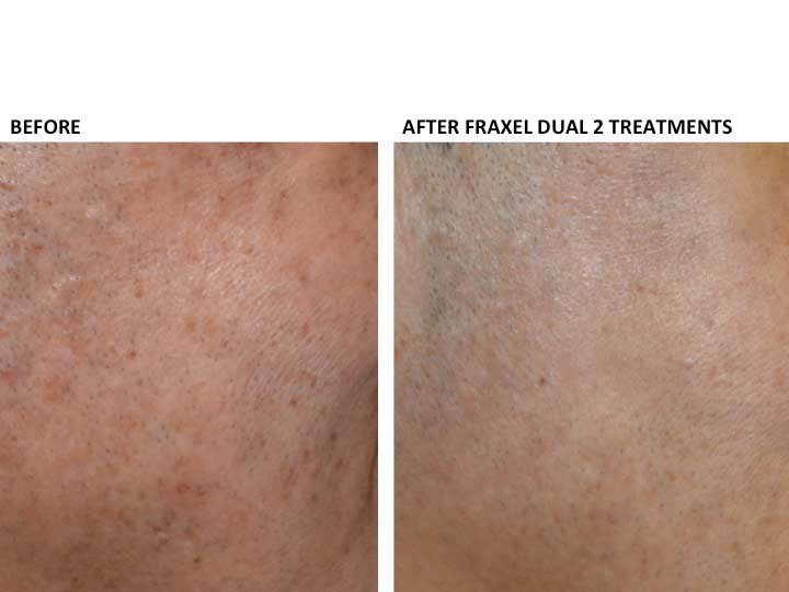 Before and After Treatment Photos: Fraxel Dual 2 Treatments