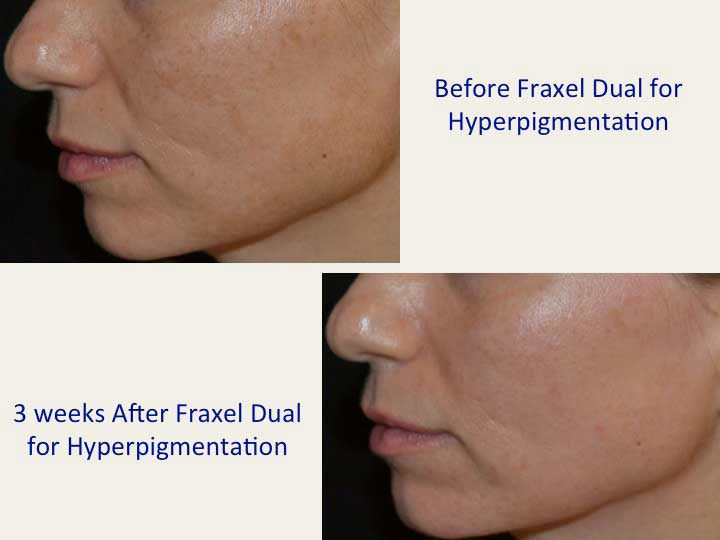 Before and After Treatment Photos: Fraxel Dual for Hyperpigmentation