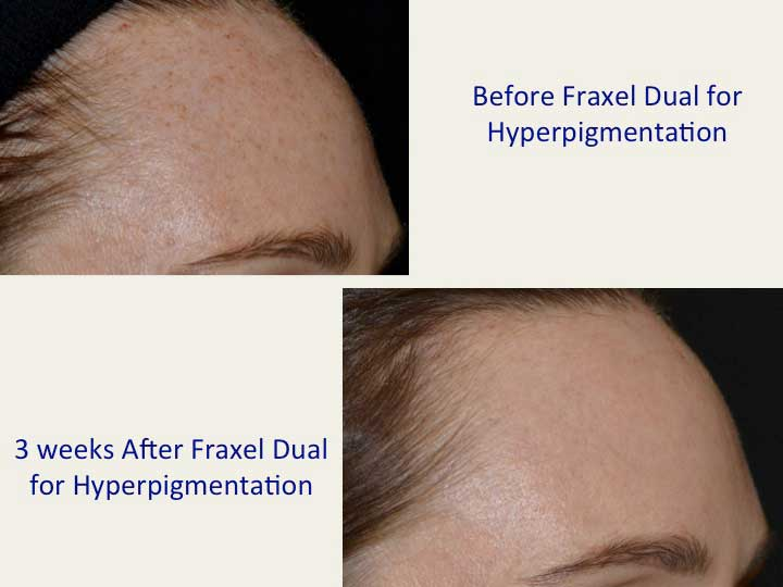 Before and After Treatment Photos - Hyperpigmentation