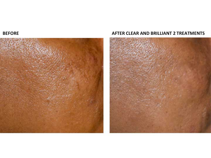 PHOTOS: Before and  After CLEAR AND BRILLIANT 2 Treatments (patient 2)