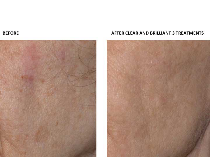 PHOTOS: Before and  After CLEAR AND BRILLIANT 3 Treatments (patient 1)