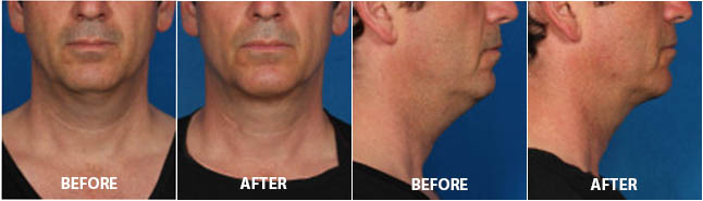 KYBELLA INJECTIONS - Before and After Treatment Photos: Male patient (frontal and right side view)