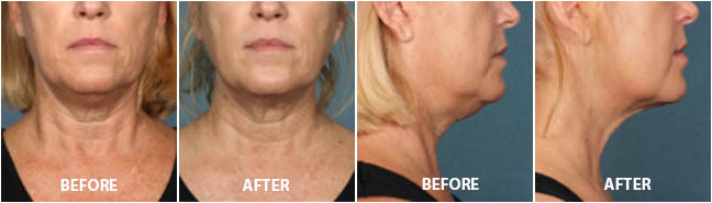 KYBELLA INJECTIONS - Before and After Treatment Photos: Female patient (frontal and right side view)