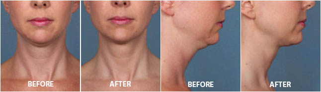 KYBELLA INJECTIONS - Before and After Treatment Photos: Woman (frontal and right side view)