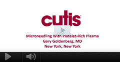 Watch Video: Dr. Gary Goldenberg demonstrates microneedling with platelet-rich plasma (PRP).