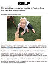 Self - Dr. Gary Goldenberg is quoted in This Mom Always Kisses Her Daughter in Public to Show That Psoriasis Isn't Contagious