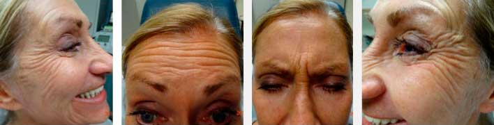 PHOTOS: DYSPORT/BOTOX - BEFORE DYSPORT INJECTIONS (female patient)