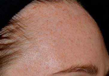 PHOTOS: Before Laser Treatment for Hyperpigmentation (forehead)