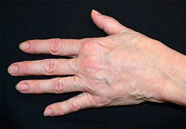 PHOTOS: HAND REJUVENATION WITH RADIESSE -  After Treatment - female patient