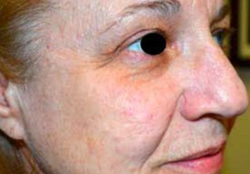 PHOTOS: RESTYLANE FOR UNDER EYEHOLLOWS - Before Treatment Female, oblique view (patient 2)