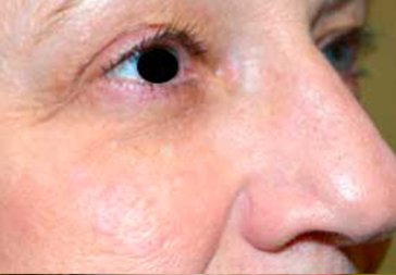 PHOTOS: RESTYLANE FOR UNDER EYEHOLLOWS - Before Treatment Woman, oblique view (patient 2)