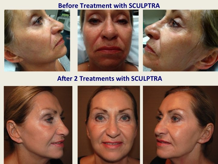 sculptra filler Bafore and After Thumb 2