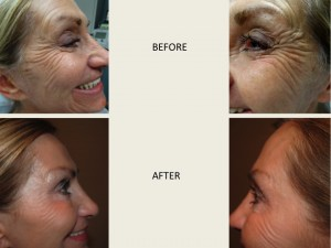 BOTOX IS APPROVED TO TREAT CROW'S FEET. Before and After Photos