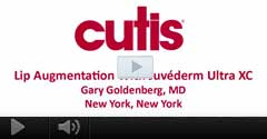 Watch Video: Dr. Gary Goldenberg talks about Lip Augmentation with Juvederm Ultra XC