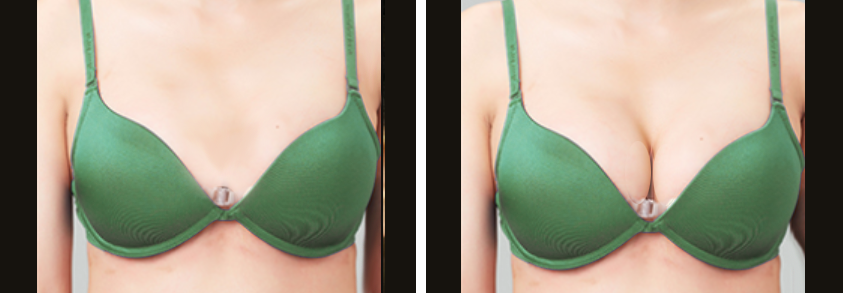 fat transfer breast enhancement nyc