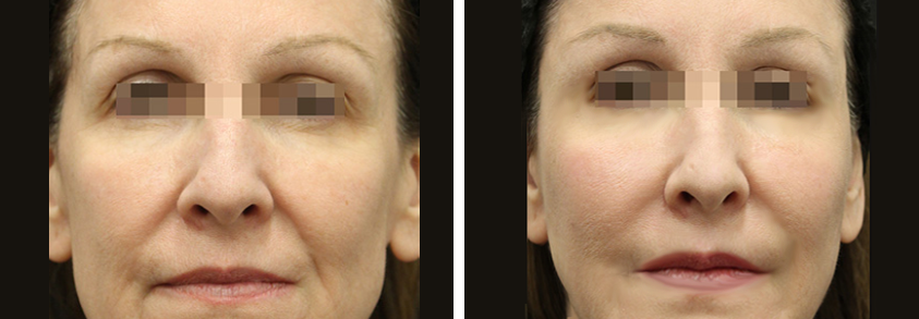 fat transfer facial filler nyc